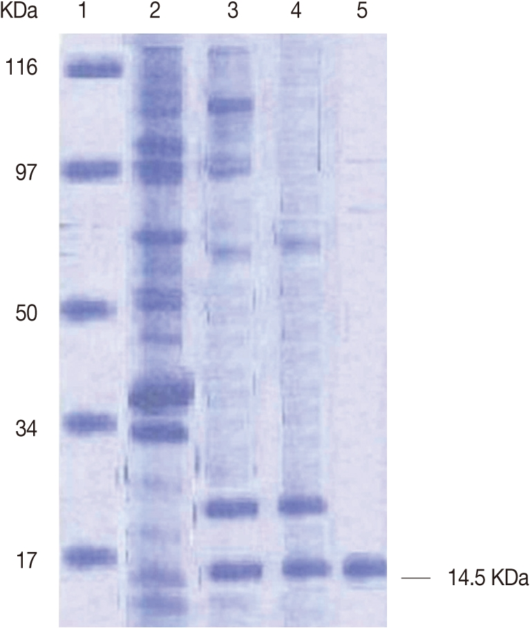 schistosoma mansoni tegument proteins From schistosoma mansoniresults in impaired tegument turnover  encoding tegument tetraspanins from schistosoma mansoni  a family of tegument membrane proteins.